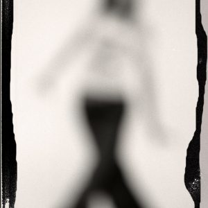 arlindo-pinto-miopia-15