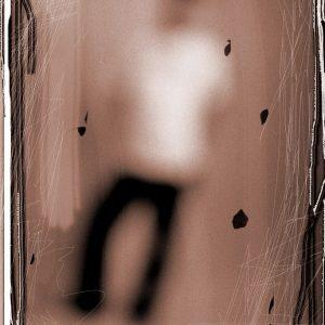 arlindo-pinto-miopia-20